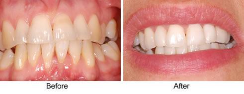 instant-orthodontics